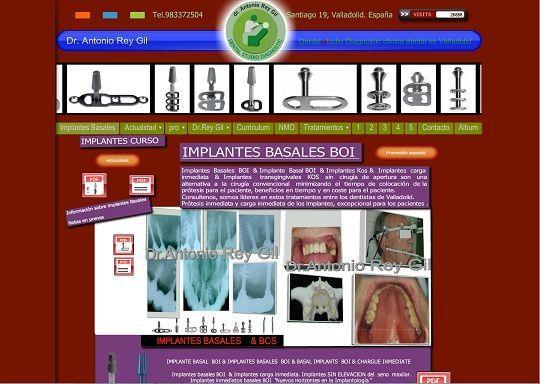 clinicas dentales en valladolid